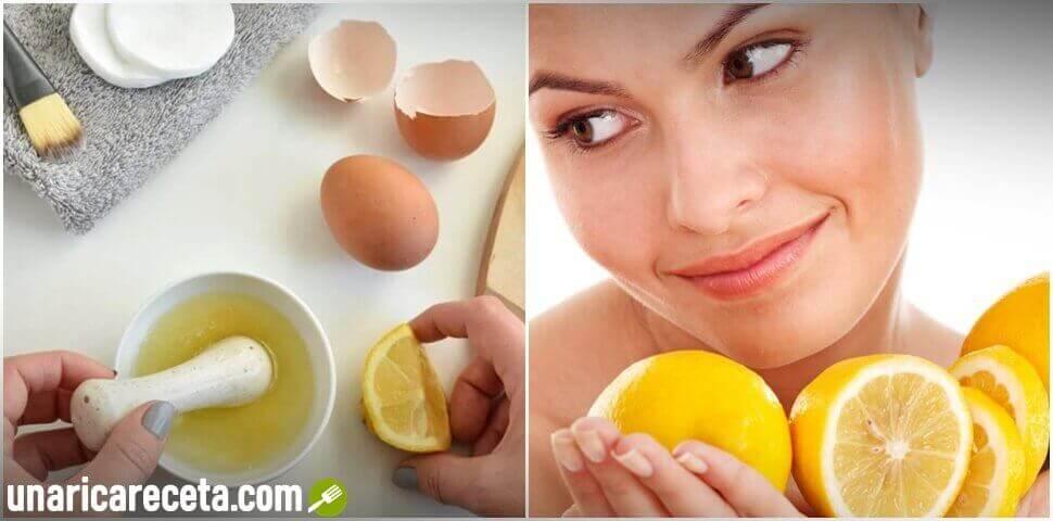 mascarilla-de-limon-y-clara-de-huevo